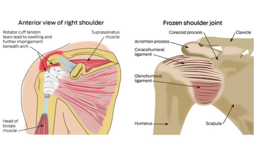 Examination Of The Shoulder Joint Doctorportal Doctorportal