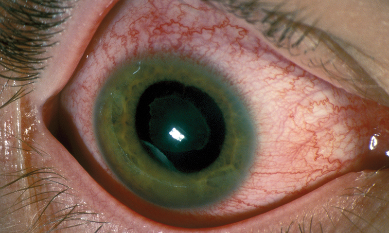 Ocular complications of rheumatic diseases