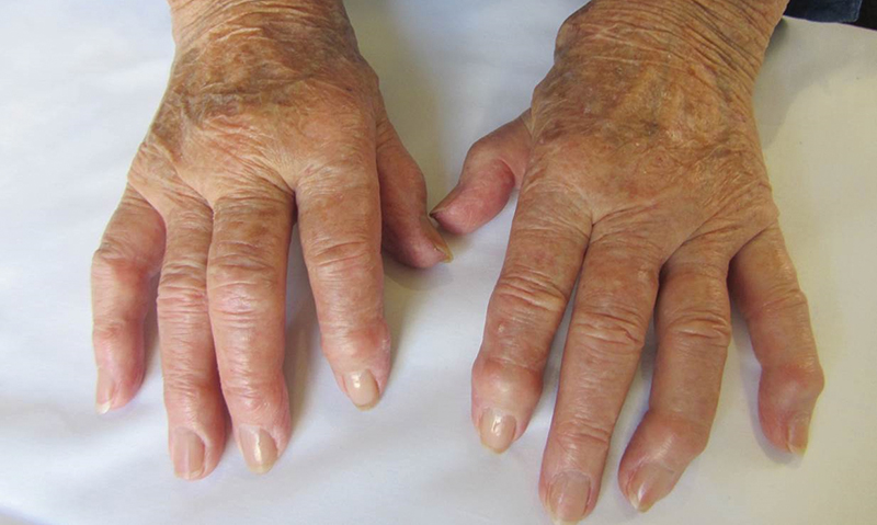 Advances in rheumatoid arthritis