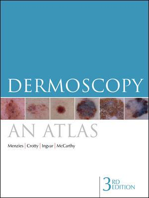 Dermoscopy - An Atlas - 3rd Rev. Edition - Featured Image