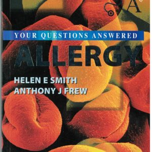 allergy-your-questions-answered-933