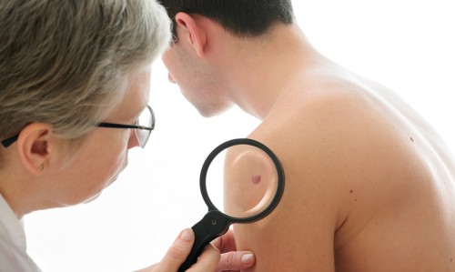Arm moles are skin cancer indicators - Featured Image