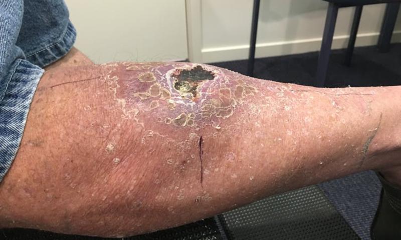 Australia's flesh-eating bug outbreak needs an urgent response
