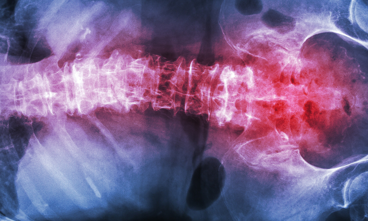 Consider ankylosing spondylitis