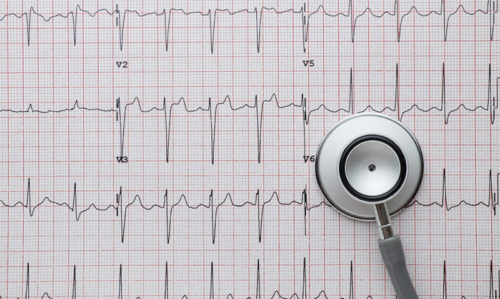 Smartphone app could be used for atrial fibrillation screening - Featured Image