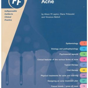 fast-facts-acne-857