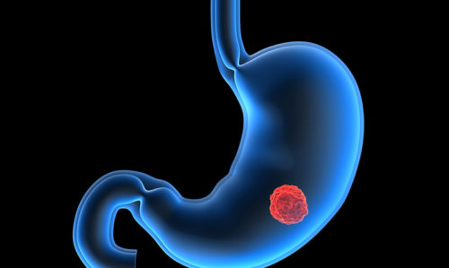 PPIs linked to gastric cancer - Featured Image
