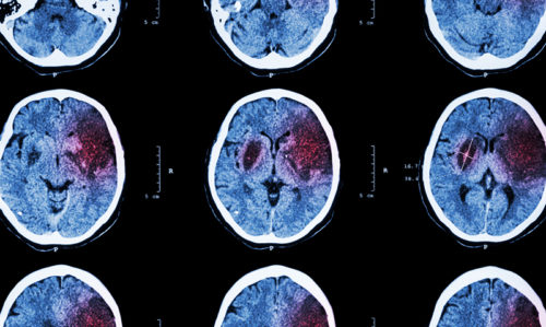 Health risks high after stroke: study - Featured Image