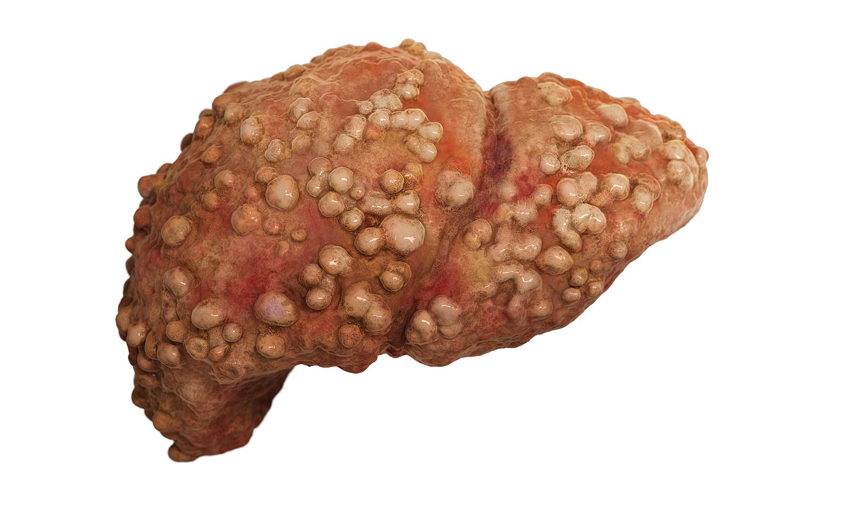 Liver cancer: catching it early the key to survival