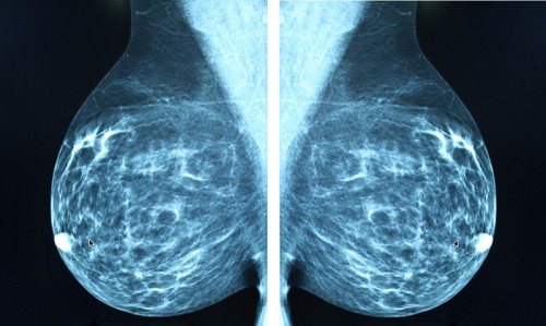Family history of breast cancer doesn't mean poor prognosis - Featured Image
