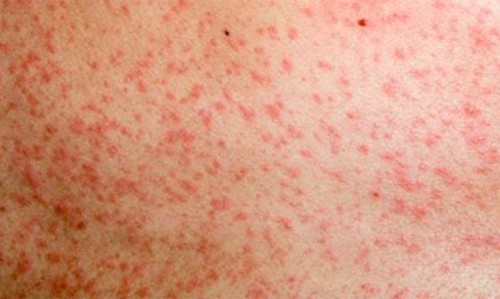 Measles alert in Brisbane - Featured Image