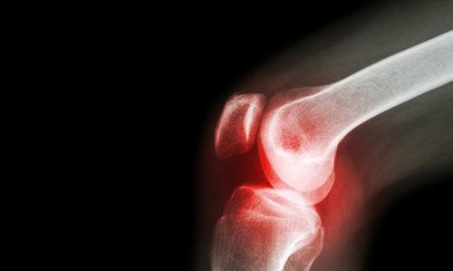 Spotlight on rheumatology - Featured Image