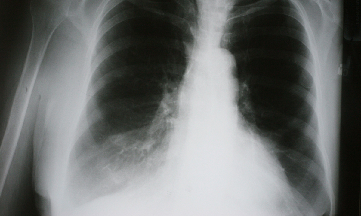 lung cancer screening guidelines australia